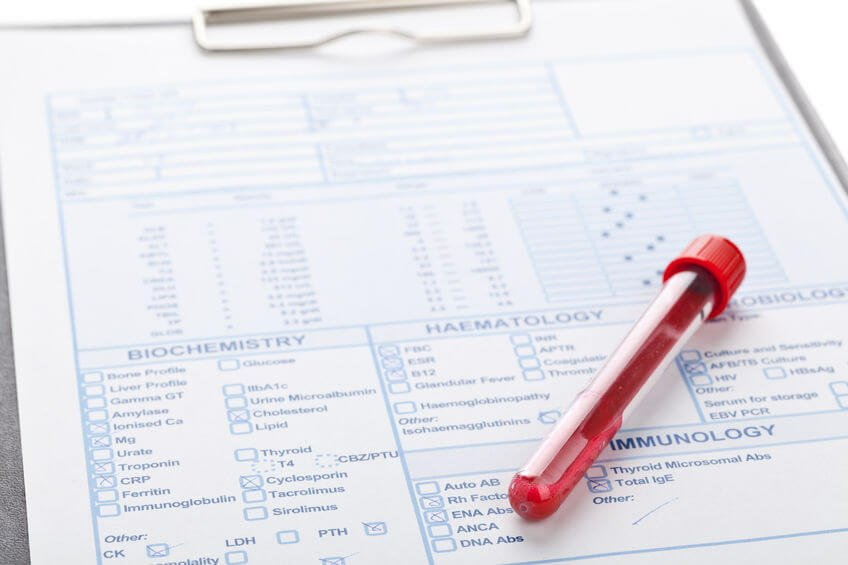 Some Of The Most Important Blood Tests To Request From Your Physician (And Why)
