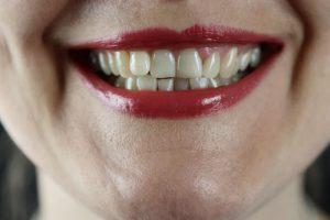 teeth | Unify Health